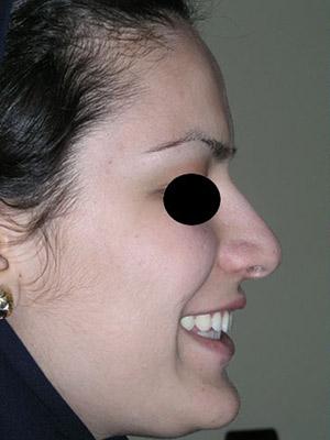 نمونه nose surgery gallery کد m49