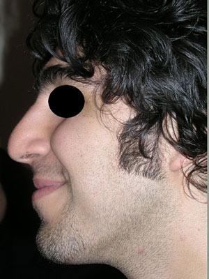 نمونه nose surgery gallery کد m5