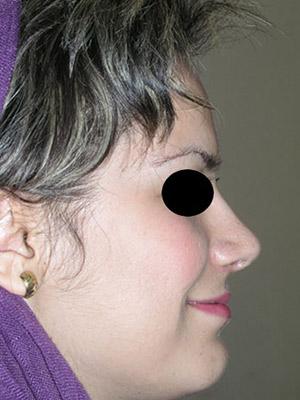 نمونه nose surgery gallery کد m50