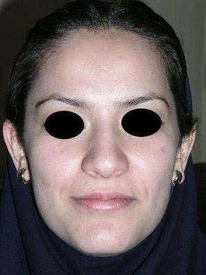 نمونه nose surgery gallery کد m51