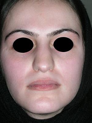نمونه nose surgery gallery کد m53