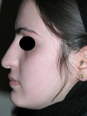 نمونه nose surgery gallery کد m55