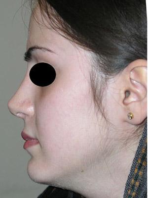 نمونه nose surgery gallery کد m56