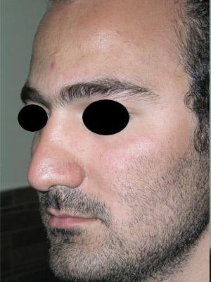 نمونه nose surgery gallery کد m57
