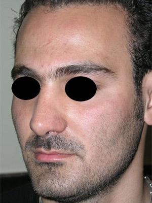 نمونه nose surgery gallery کد m58