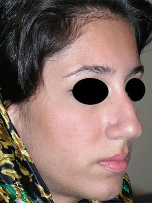 نمونه nose surgery gallery کد m59