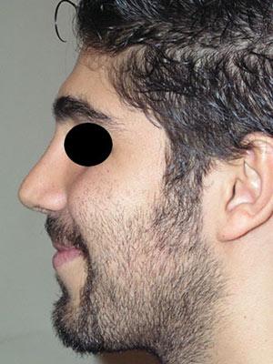 نمونه nose surgery gallery کد m6