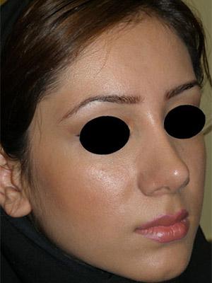 نمونه nose surgery gallery کد m60