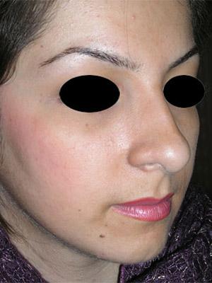 نمونه nose surgery gallery کد m61