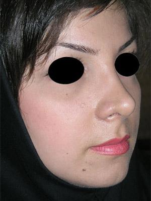 نمونه nose surgery gallery کد m62