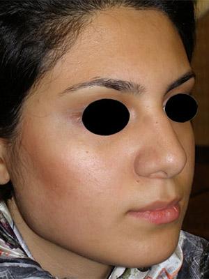 نمونه nose surgery gallery کد m63