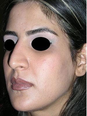 نمونه nose surgery gallery کد m7