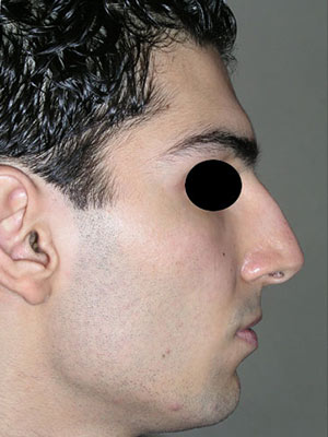 نمونه nose surgery gallery کد m9