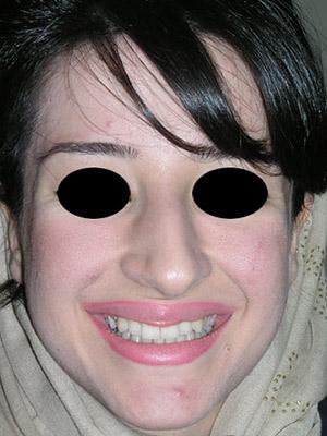 نمونه Cosmetic nose surgery کد sa1