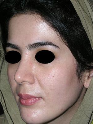 نمونه Cosmetic nose surgery کد sa10