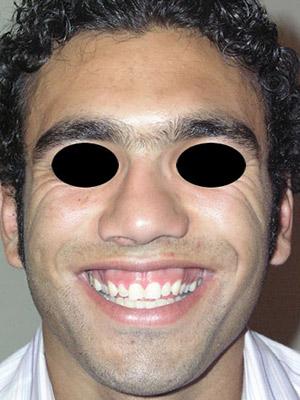 نمونه Cosmetic nose surgery کد sa11