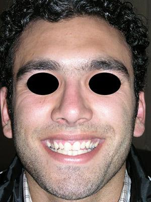 نمونه Cosmetic nose surgery کد sa12