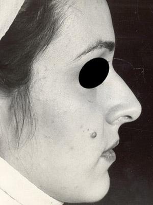 نمونه Cosmetic nose surgery کد sa13