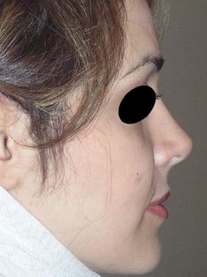 نمونه Cosmetic nose surgery کد sa14