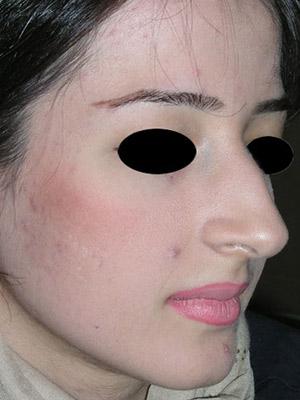نمونه nose surgery gallery کد sa17