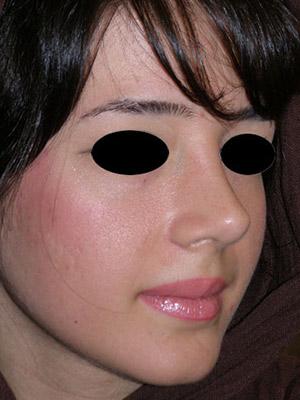 نمونه Cosmetic nose surgery کد sa18