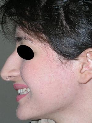 نمونه Cosmetic nose surgery کد sa19