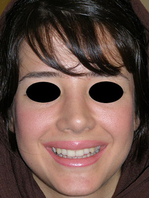 نمونه Cosmetic nose surgery کد sa2