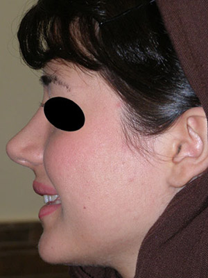 نمونه nose surgery gallery کد sa20