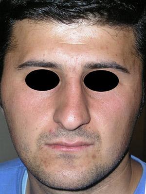 نمونه Cosmetic nose surgery کد sa21