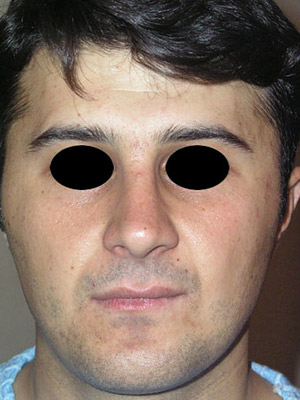 نمونه nose surgery gallery کد sa22