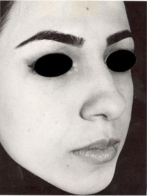نمونه Cosmetic nose surgery کد sa25