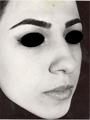 نمونه nose surgery gallery کد sa25