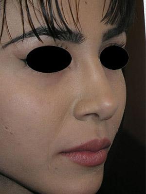 نمونه Cosmetic nose surgery کد sa26
