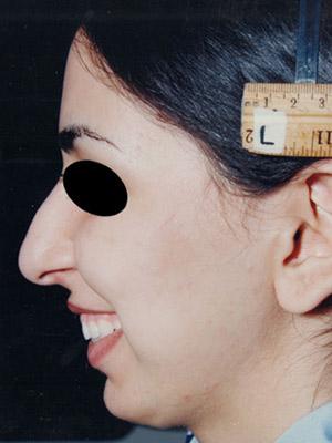 نمونه Cosmetic nose surgery کد sa27