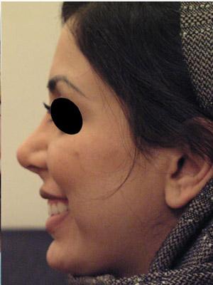 نمونه Cosmetic nose surgery کد sa28