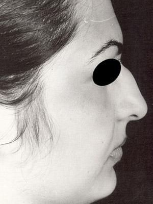 نمونه Cosmetic nose surgery کد sa29