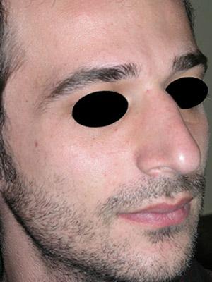 نمونه Cosmetic nose surgery کد sa3