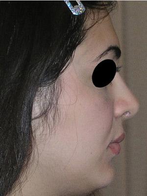 نمونه Cosmetic nose surgery کد sa30