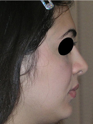 نمونه nose surgery gallery کد sa30