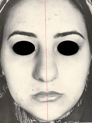 نمونه Cosmetic nose surgery کد sa31