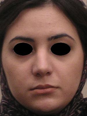 نمونه Cosmetic nose surgery کد sa32
