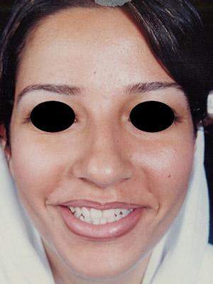نمونه nose surgery gallery کد sa33