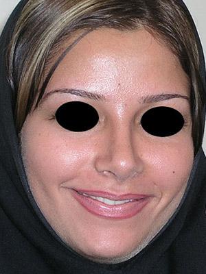 نمونه Cosmetic nose surgery کد sa34