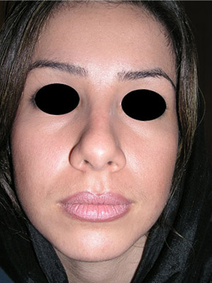 نمونه Cosmetic nose surgery کد sa35