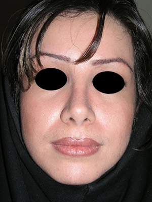 نمونه Cosmetic nose surgery کد sa36