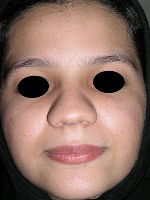 نمونه Cosmetic nose surgery کد sa37