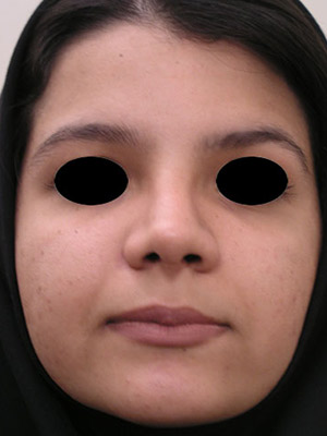 نمونه nose surgery gallery کد sa38