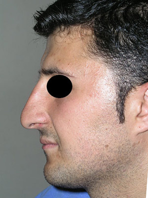 نمونه nose surgery gallery کد sa39