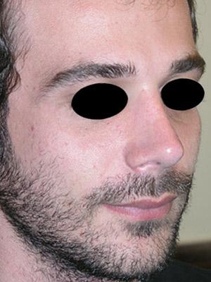 نمونه Cosmetic nose surgery کد sa4
