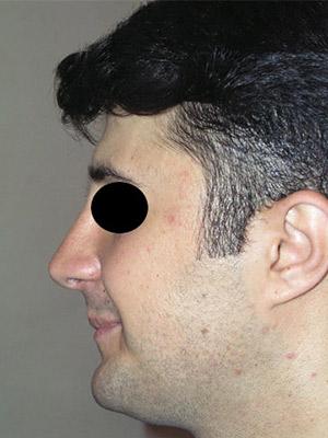 نمونه Cosmetic nose surgery کد sa40